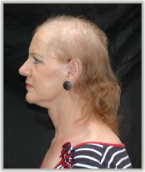 female-baldness