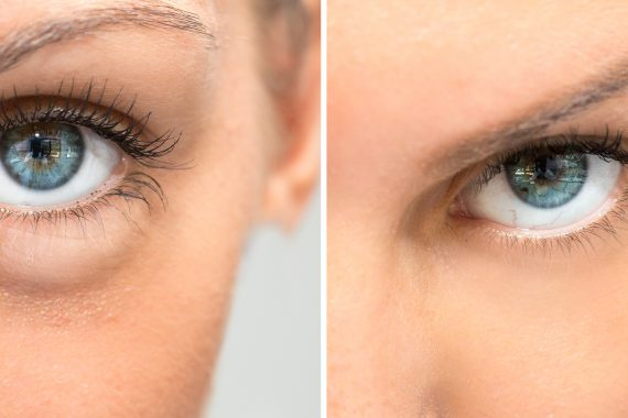 Collage of two eyes showind difference after use of cosmetic